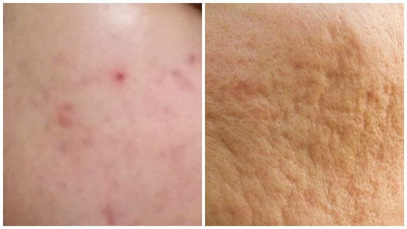 post-inflammatory-hyperpigmentation-PIH-bekas-jerawat-2-800x450